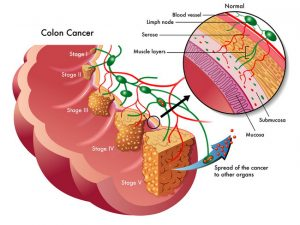medical illustration of the different stages of colon cancer | Colon Cancer Screenings