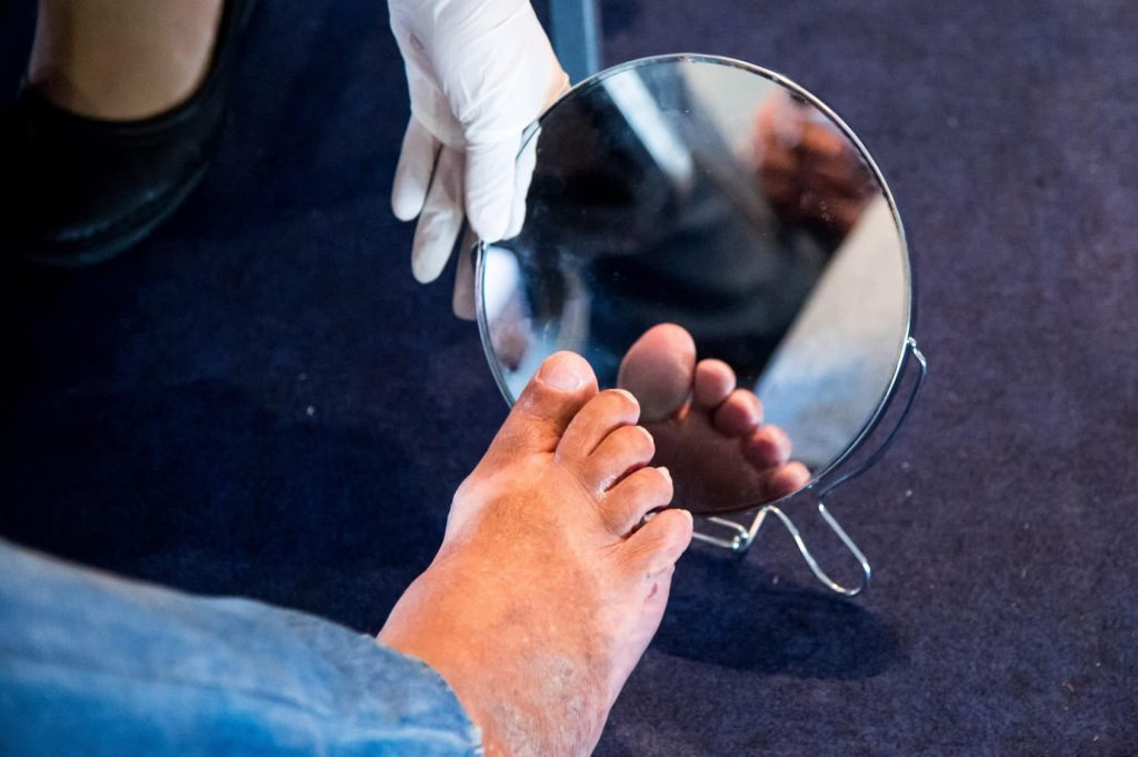Diabetic foot care tips use a mirror to check your feet